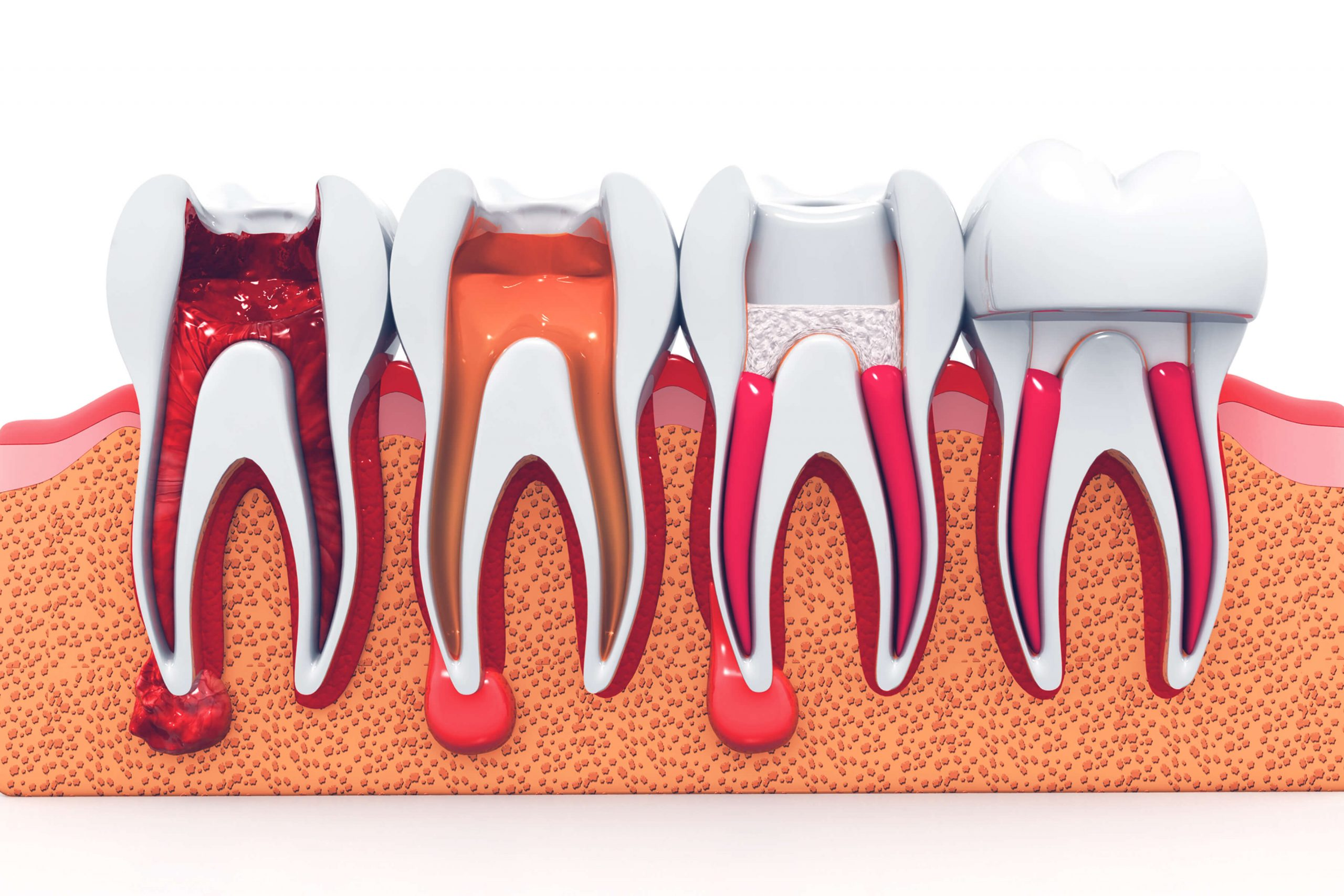Benefits And Procedure Of A Root Canal Treatment In Alexandria